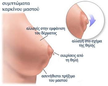Καρκίνος Μαστού Συμπτώματα